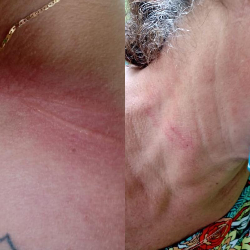 Acidente com linha de cerol atinge pescoço de professora e genitora em Parintins